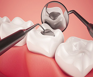 Dental-Fillings-2-1
